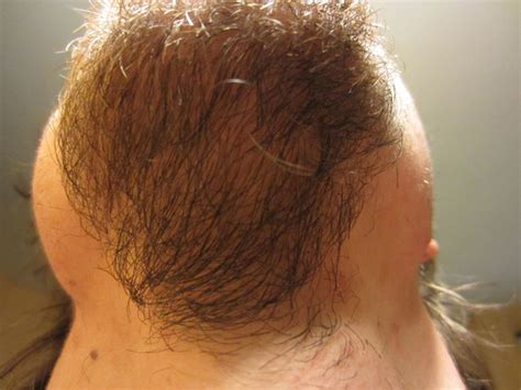 Hair Shedding Rogaine - log quest to a living receding hairline fix