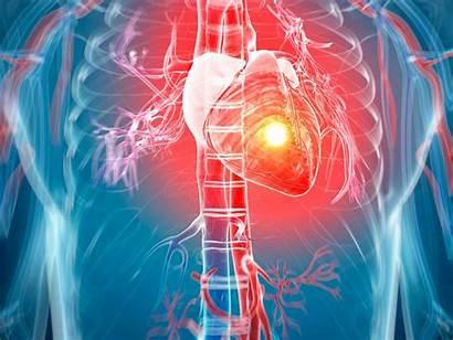 Heart Attack Attacks Half Cardiology Failure Symptoms