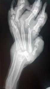 Birkenhead Animal Cruelty  Elmo The Dog Dies After  U0026 39 Nearly Every Bone In His Body Was Broken U0026 39