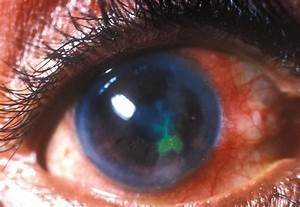 Corneal Ulcer Treatment Through Home Remedies And Natural