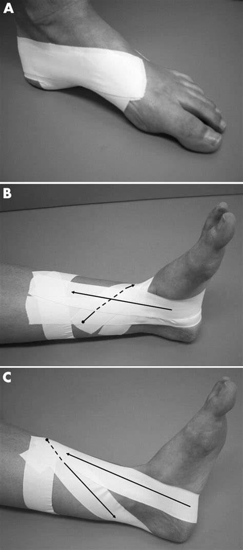 Initial effects of anti-pronation tape on the medial