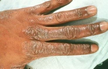 Word 2 the Wise: Is your skin cracking, peeling, and flaking?