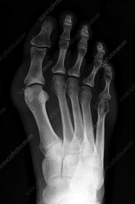 bunion  ray stock image  science photo library