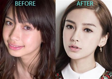 Bad Plastic Surgery Before And After Plastic Surgery. Ipad Mini Model Numbers Corporate Email Lists. Houston Bariatric Surgeons Dentist In Troy Mi. Case Studies On Supply Chain Management. Storage For Pictures Online Hosted Ftp Site. Lincoln Dealerships Michigan. Virtual Server Hosting Reviews. How To Get A Cheap Insurance Quote. Business Secured Credit Cards