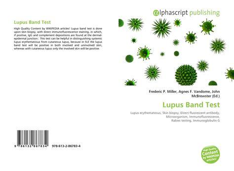 lupus band test lupus band test 978 613 2 86783 4 613286783x 9786132867834