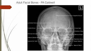 How To Read Facial Bone X-rays By Peter Andre Soltau