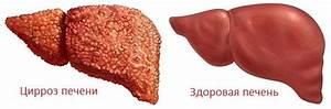 Препарат для понижения холестерина в печени
