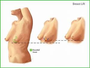 Breast Reconstruction (Oncoplastic Surgery): Johns Hopkins ...  Breast
