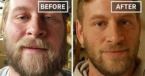 Before And After Pics Show Exactly How People Change After They Give Up Drinking