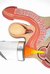 Лечение аденомы толстой кишки
