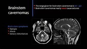 Brain Vascular Malformations