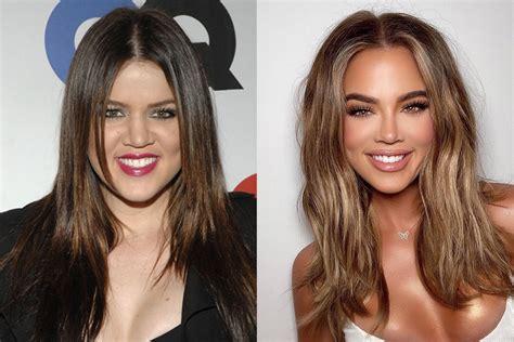 All The Kardashian-Jenners' Plastic Surgery Procedures ...