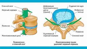 Красноярск клиника лечение остеохондроза