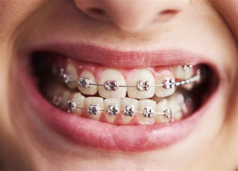 At elara orthodontics, we are in network with the vast majority of dental insurance providers so in most cases insurance covers braces. Do I Need Braces?   Marcus Black DDS   Dentistry Services in Rogers AR
