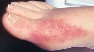 Gout - Bone  Joint  And Muscle Disorders