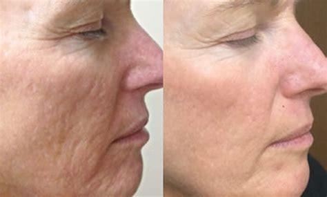 skin needling treatment microneedling skin treatment