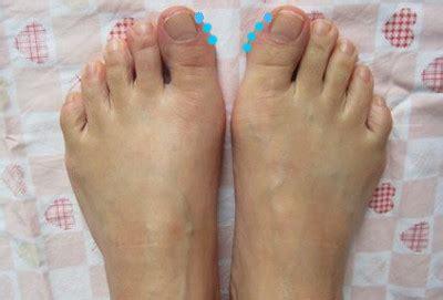 足 の 親指 の 爪 臭い