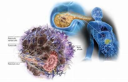 Cancer Pancreatic Beat Winship Odds Illustration Through