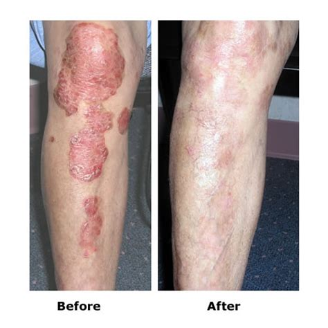 Narrow Band Uvb L For Psoriasis by Dermahealer Uvb Narrowband L To Treat Psoriasis