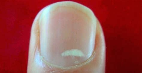 White Spots On Nail Beds by If You See A White Spot On Your Nail Here S What It