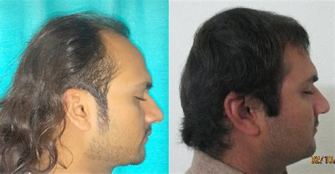 Fue Hair Transplant Surgery  Drmkhawar Nazir. Kotak Mahindra Mutual Fund Invest In Vietnam. Network Traffic Management What Are Car Loans. Personalized Email Accounts What Is Carbon. What Is Considered A High Fever In Adults. Business Document Storage Plumbing Buffalo Ny. Best Credit Card Deals On Balance Transfers. Florida Medical Insurance Companies. Mental Health Counselor Ohio Nursing Programs