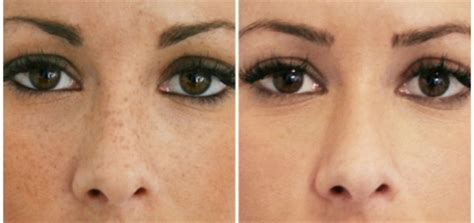 Laser Freckle Removal – Cost, Before and After, Best
