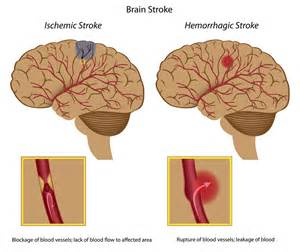 Hemorrhagic stroke : this is rarer, but occurs due to a burst blood ... Stroke