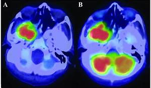 Positron Emission Tomography Scan Prior To Surgery Showing