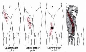 Pin En Health Myofascial Release Trigger Point