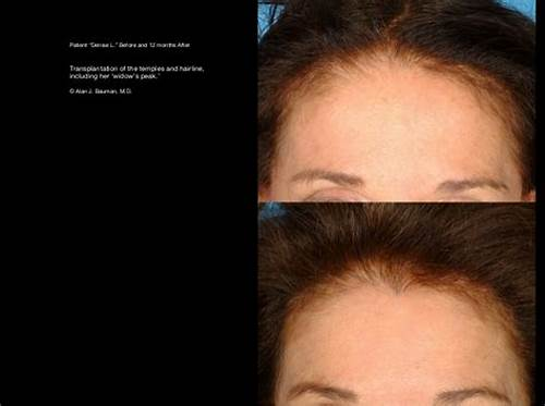 Sore Four With A Delicious Ukrainian Red Haired Junior #Hair #Transplant #Results #Including #Male #Female, #Eyelash