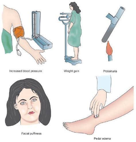 All weights and dimensions are approximate and are for guidance only. Pre-Eclampsia,Clinical Manifestation and Prevention - Nursing Manual