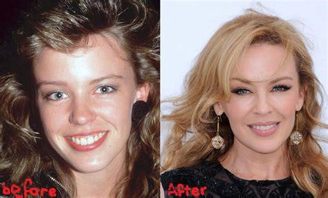 Kylie Minogue Plastic Surgery