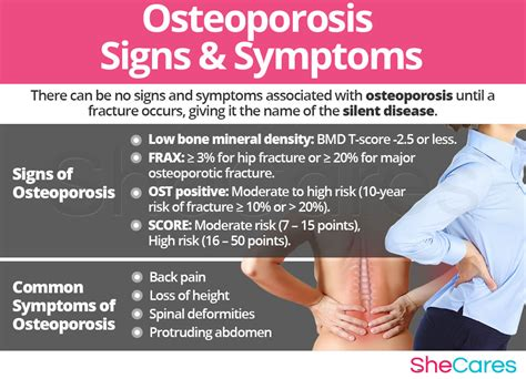 Osteoporosis Symptoms and Signs