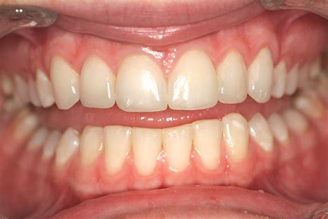 veneer prices veneers procedure cost related keywords veneers procedure cost long tail keywords keywordsking