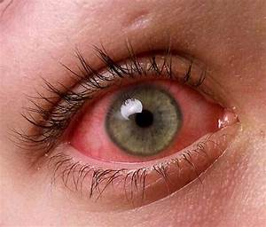 Conjunctivitis Or Pinkeye Symptoms And Treatments