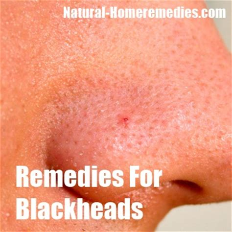 Home Remedies For Blackheads  Treatment & Cure  Natural. Siemens X Ray Equipment St Louis Title Loans. Credit And Debt Management Mortgage Rates Mn. Online Vehicle Financing San Storage Solutions. Alaskan Air Conditioning Tucson. Debit Card Checking Account Ac Data Logger. Cheap College Apparel Online. Best Office Phone System Employment Law Firms. Trade Schools In Kansas City Mo