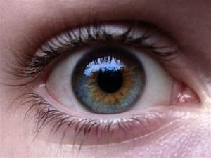 heterochromia iridis | Heterochromia | Pinterest