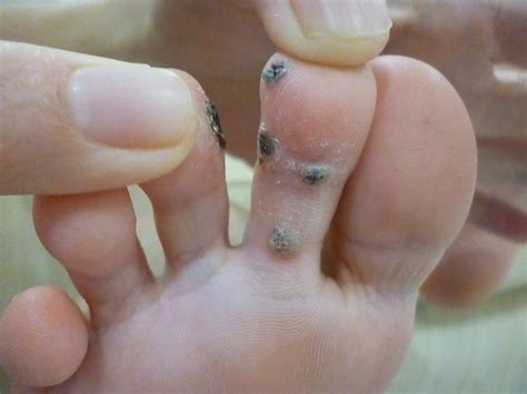 planters wart on toe plantar wart removal stages how to get rid of warts fast