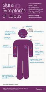 Help Your Doctor Diagnose Lupus