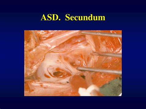 Ppt  Atrial Septal Defect Powerpoint Presentation Id354587