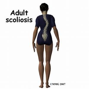 scoliosis pain management exercises