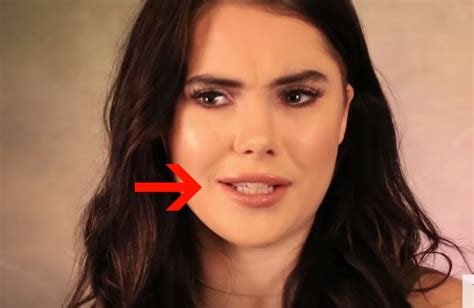 olympian mckayla maroney  real       lip injections