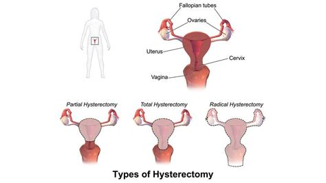 Hysterectomy (Abdominal) with Salpingo-Oophorectomy