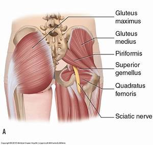 What Is Piriformis Syndrome And What Are Its Causes