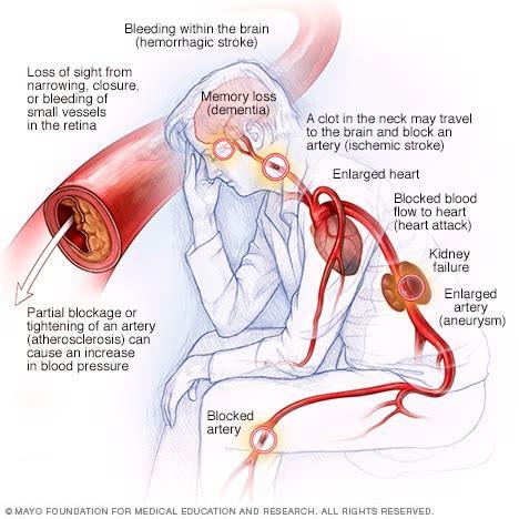 mcdchigh blood pressure complications  drman