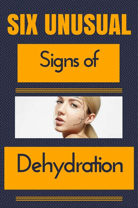 6 Unusual Signs Of Dehydration You Should Know About. Number 8 Signs Of Stroke. True Signs Of Stroke. Dermatitis Signs Of Stroke. Saya Signs Of Stroke. Different Style Signs. Legs Signs. Holiday Signs. Driving Signs