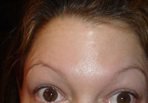 Eyebrow Transplants? Why bother? ROGAINE!!!