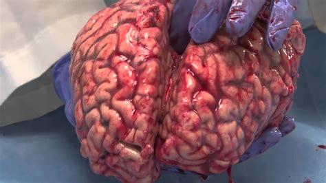 el cerebro humano tres ubres dobles