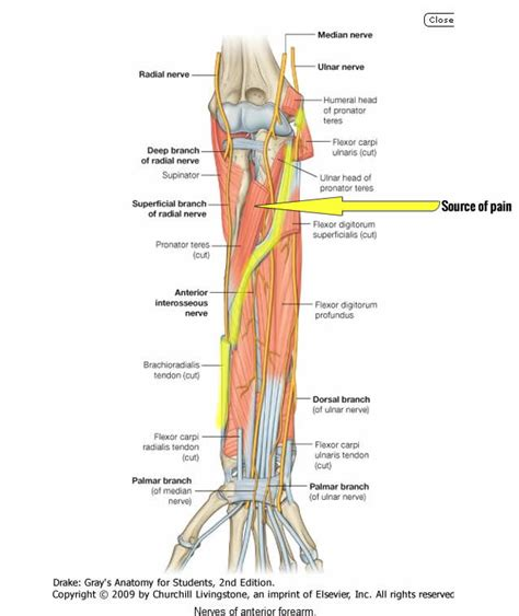 We can tell this is a ventral view of the forearm because we can see the palmar aponeurosis (a thin, tendinous sheath that is only on the palmar side of the hand) and. Cure Bicep Tendinitis and Brachioradialis Forearm Tendinitis