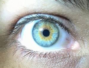Central heterochromia Iridis | Heterochromia Iridum ...